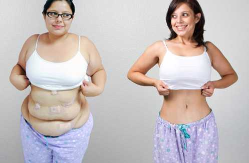 Pros and Cons of Gastric Sleeve